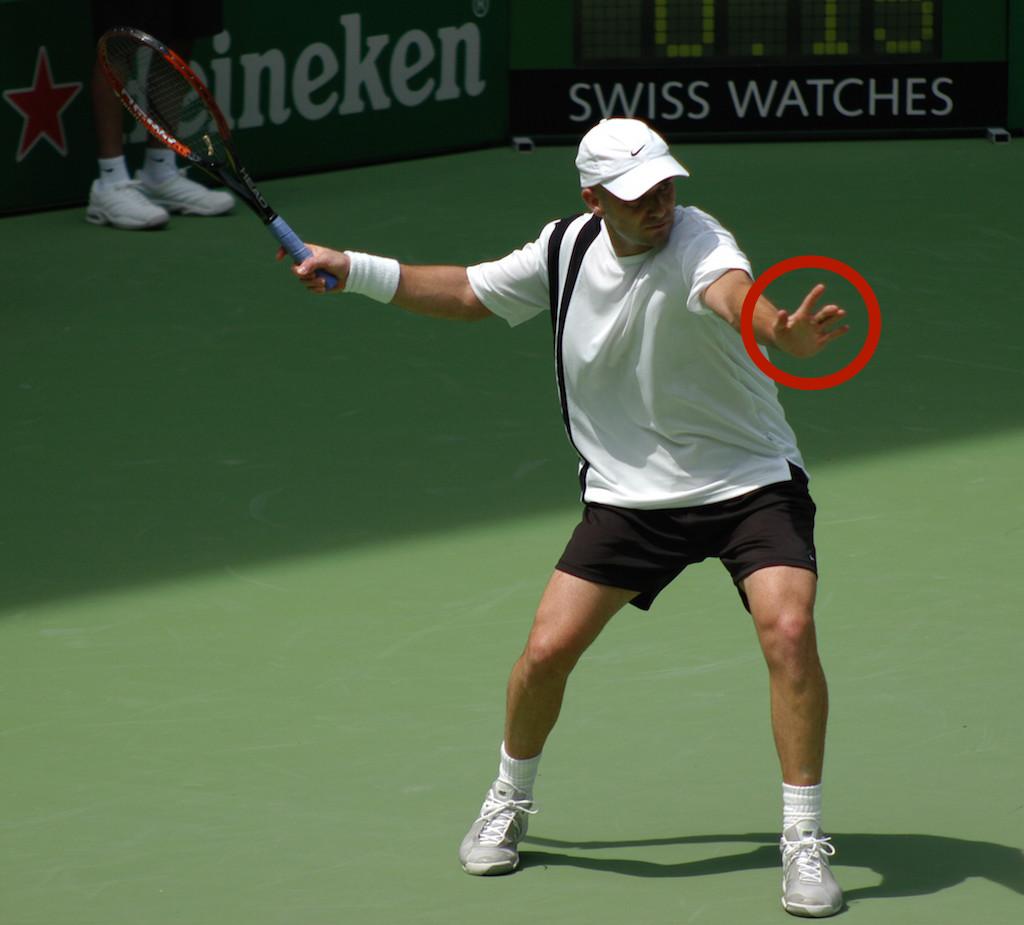tennis arm